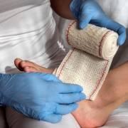lesioni da pressione anziano e badanti